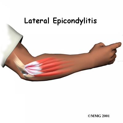 http://patientsites.com/media/img/638/elbow_latepi_intro01.jpg