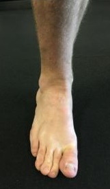 Foot with pronation