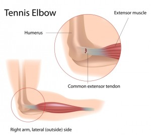 What is Tennis Elbow (Lateral Epicondylitis) 1